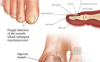 GOOD SOLUTIONS! Best natural cures for toenail fungus